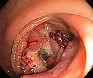 Advanced colon cancer